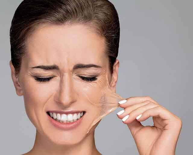 the-benefits-and-side-effects-of-salicylic-acid-peels