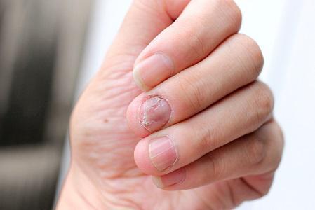 fungal rash