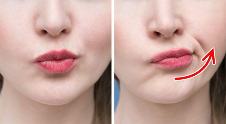 Side Kisses face fat