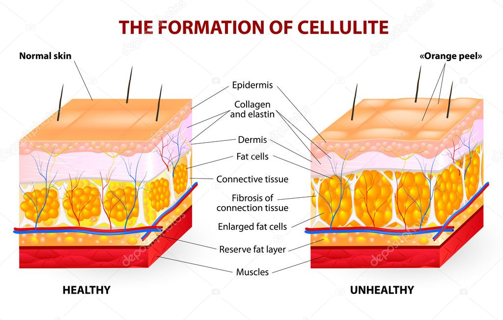 What is Cellulitis?